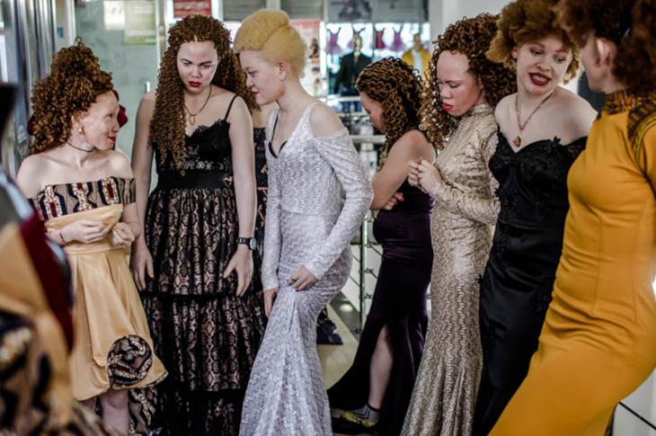 Dünyanın İlk Albino Afrikalı Güzellik Yarışması Düzenlendi