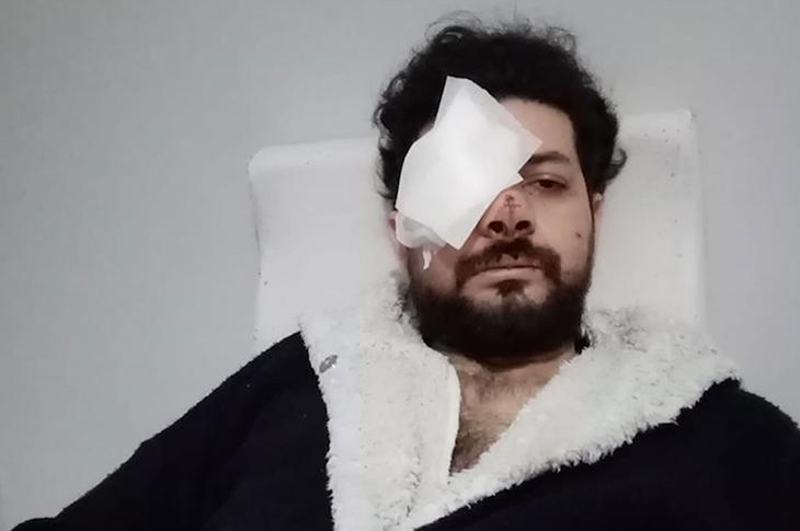 Genç Müzisyen Şahan Dinç Maganda Kurşunu Yüzünden Gözünü Kaybetti