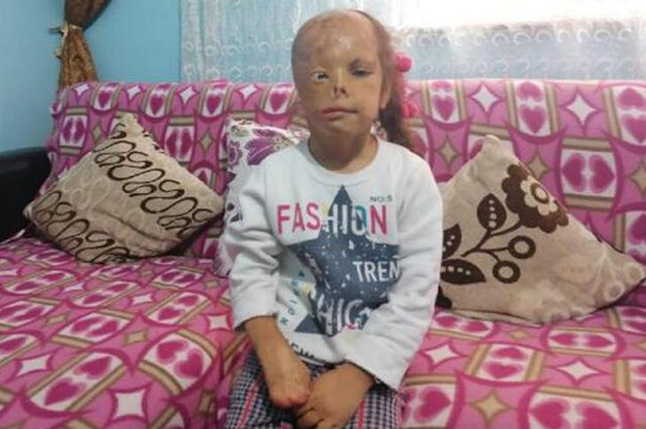 Yüzü Yanan Dilara Şencan için Sağlık Bakanlığı Devreye Girdi
