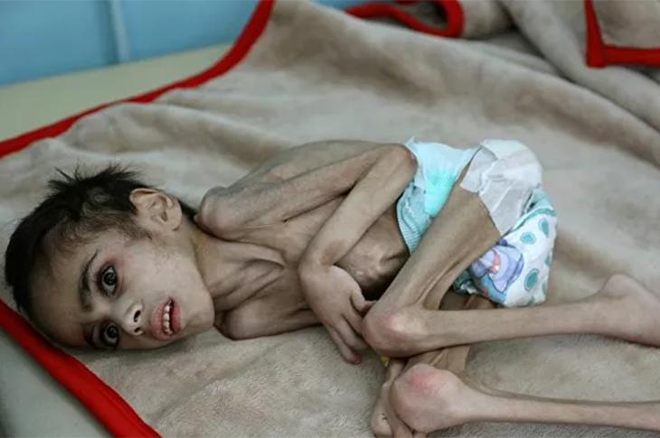 7 Kiloluk Beyin Felci Hastası Faid'in Hayat Savaşı