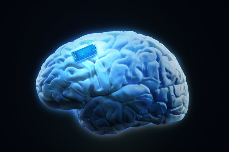 Beyin İmplantı ile Düşünceler Metne Dönüşüyor